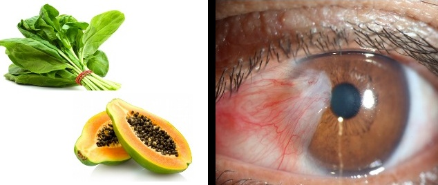 How To Cure Red Eyes With Natural Tips