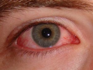 6 Ways to Treat Pink Eye at Home